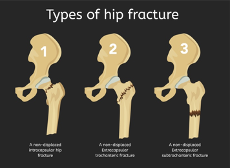Diagram of hip fracture types