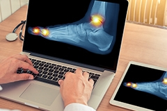 A foot x-ray being displayed on a laptop computer