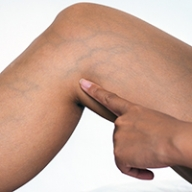A woman's leg with prominent veins