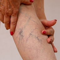 A woman rubbing her leg with prominent veins